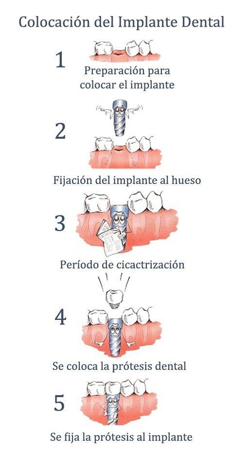 fases de los implantes dentales